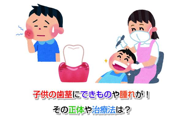 Children gum Eye-catching image2