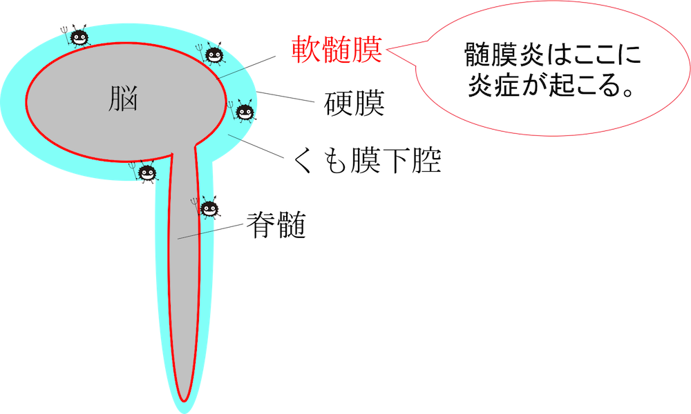 meningitis figure2