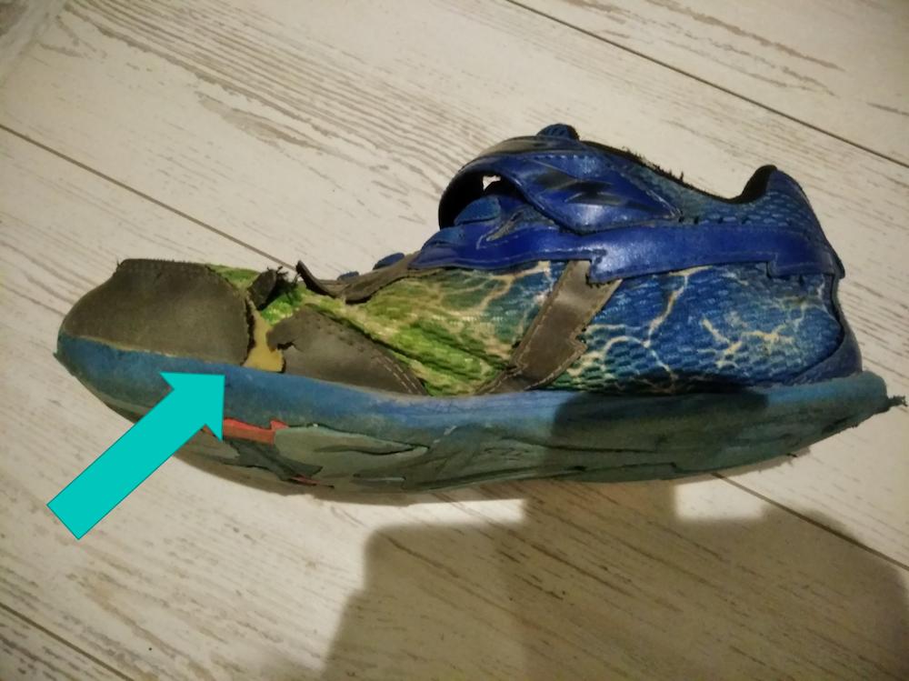 靴が破れる